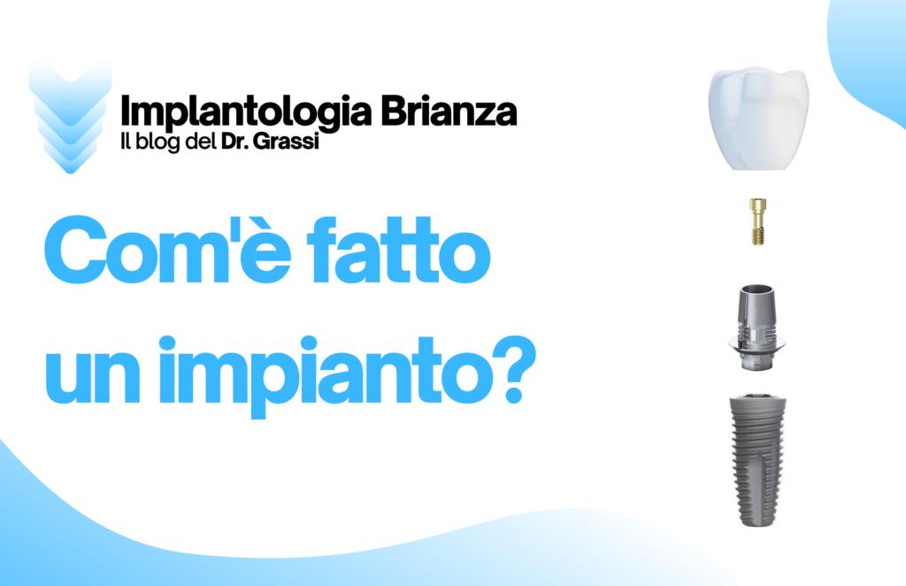 Che cos'è un impianto dentale? Com'è fatto?